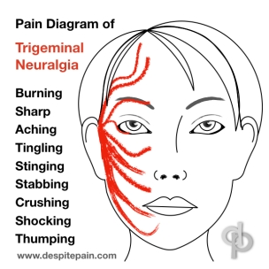 Description of Trigeminal Neuralgia, which is a rare disease. Face pain which is burning, aching, sharp, stabbing, crushing and shocking.