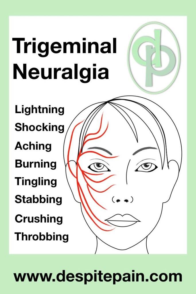 Trigeminal Neuralgia. Picture of face showing trigeminal nerve, ophthalmic, maxillary and mandibular branch.